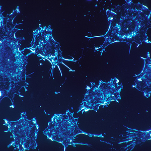 Синтезирована уникальная вакцина против рака